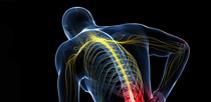 Spinal Chord Injury